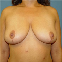 Breast Lift After Photo by Ram Kalus, MD; Mount Pleasant, SC - Case 30674