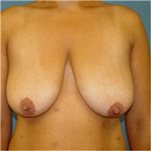 Breast Lift Before Photo by Ram Kalus, MD; Mount Pleasant, SC - Case 30674