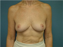 Breast Lift After Photo by Ram Kalus, MD; Mount Pleasant, SC - Case 30675