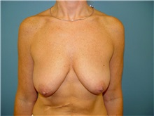 Breast Lift Before Photo by Ram Kalus, MD; Mount Pleasant, SC - Case 30675