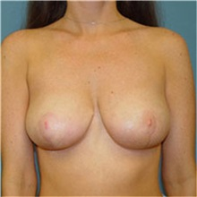 Breast Lift After Photo by Ram Kalus, MD; Mount Pleasant, SC - Case 30676