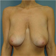 Breast Lift Before Photo by Ram Kalus, MD; Mount Pleasant, SC - Case 30676