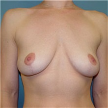 Breast Lift After Photo by Ram Kalus, MD; Mount Pleasant, SC - Case 30677