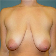Breast Lift Before Photo by Ram Kalus, MD; Mount Pleasant, SC - Case 30677