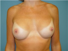 Breast Augmentation After Photo by Ram Kalus, MD; Mount Pleasant, SC - Case 30679
