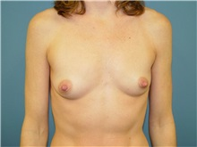 Breast Augmentation Before Photo by Ram Kalus, MD; Mount Pleasant, SC - Case 30679
