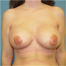 Breast Reconstruction After Photo by Ram Kalus, MD; Mount Pleasant, SC - Case 30680