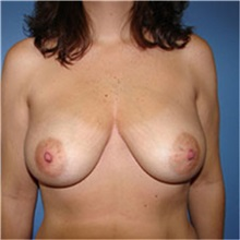 Breast Reconstruction Before Photo by Ram Kalus, MD; Mount Pleasant, SC - Case 30680