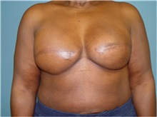 Breast Reconstruction After Photo by Ram Kalus, MD; Mount Pleasant, SC - Case 30681