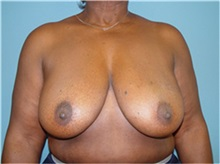 Breast Reconstruction Before Photo by Ram Kalus, MD; Mount Pleasant, SC - Case 30681