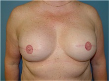 Breast Reconstruction After Photo by Ram Kalus, MD; Mount Pleasant, SC - Case 30682