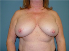 Breast Reconstruction Before Photo by Ram Kalus, MD; Mount Pleasant, SC - Case 30682