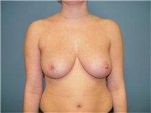 Breast Reduction After Photo by Ram Kalus, MD; Mount Pleasant, SC - Case 30683