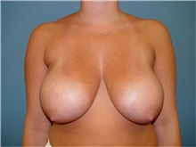 Breast Reduction Before Photo by Ram Kalus, MD; Mount Pleasant, SC - Case 30683