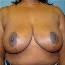 Breast Reduction After Photo by Ram Kalus, MD; Mount Pleasant, SC - Case 30684