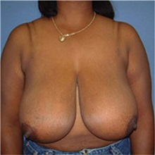 Breast Reduction Before Photo by Ram Kalus, MD; Mount Pleasant, SC - Case 30684