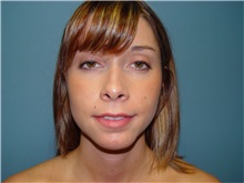 Chin Augmentation After Photo by Ram Kalus, MD; Mount Pleasant, SC - Case 30685