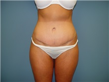 Tummy Tuck After Photo by Ram Kalus, MD; Mount Pleasant, SC - Case 30689