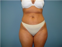 Tummy Tuck Before Photo by Ram Kalus, MD; Mount Pleasant, SC - Case 30689