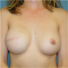 Breast Reconstruction After Photo by Ram Kalus, MD; Mount Pleasant, SC - Case 30690