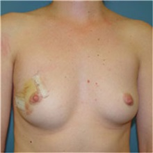 Breast Reconstruction Before Photo by Ram Kalus, MD; Mount Pleasant, SC - Case 30690