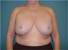 Breast Reduction After Photo by Ram Kalus, MD; Mount Pleasant, SC - Case 30691