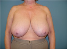 Breast Reduction Before Photo by Ram Kalus, MD; Mount Pleasant, SC - Case 30691