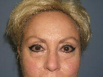 Eyelid Surgery Before Photo by Constance Barone, MD; San Antonio, TX - Case 9304