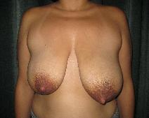 Breast Reduction Before Photo by Constance Barone, MD; San Antonio, TX - Case 9407