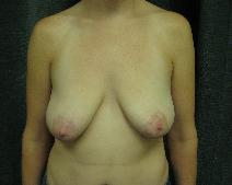 Breast Lift Before Photo by Constance Barone, MD; San Antonio, TX - Case 9409