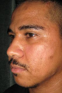 Rhinoplasty Before Photo by Constance Barone, MD; San Antonio, TX - Case 9410