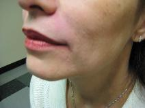 Dermal Fillers After Photo by Constance Barone, MD; San Antonio, TX - Case 9991