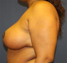 Breast Reduction After Photo by Laurence Glickman, MD, MSc, FRCS(c),  FACS; Garden City, NY - Case 28000