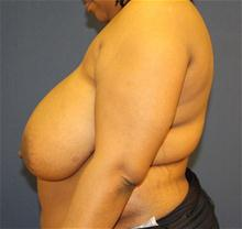Breast Reduction Before Photo by Laurence Glickman, MD, MSc, FRCS(c),  FACS; Garden City, NY - Case 28000