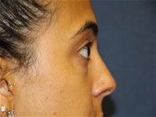 Eyelid Surgery Before Photo by Laurence Glickman, MD, MSc, FRCS(c),  FACS; Garden City, NY - Case 28576