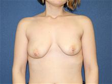 Breast Lift Before Photo by Laurence Glickman, MD, MSc, FRCS(c),  FACS; Garden City, NY - Case 28579