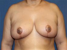 Breast Reduction After Photo by Laurence Glickman, MD, MSc, FRCS(c),  FACS; Garden City, NY - Case 29117
