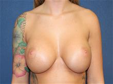 Breast Augmentation After Photo by Laurence Glickman, MD, MSc, FRCS(c),  FACS; Garden City, NY - Case 29118