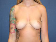 Breast Augmentation Before Photo by Laurence Glickman, MD, MSc, FRCS(c),  FACS; Garden City, NY - Case 29118