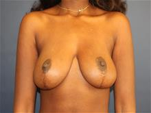 Breast Reduction After Photo by Laurence Glickman, MD, MSc, FRCS(c),  FACS; Garden City, NY - Case 29120