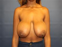 Breast Reduction Before Photo by Laurence Glickman, MD, MSc, FRCS(c),  FACS; Garden City, NY - Case 29120