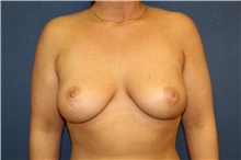 Breast Lift After Photo by Laurence Glickman, MD, MSc, FRCS(c),  FACS; Garden City, NY - Case 29121