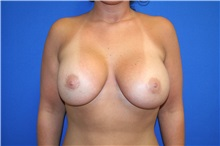 Breast Lift Before Photo by Laurence Glickman, MD, MSc, FRCS(c),  FACS; Garden City, NY - Case 29121