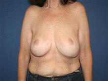 Breast Lift After Photo by Laurence Glickman, MD, MSc, FRCS(c),  FACS; Garden City, NY - Case 29123