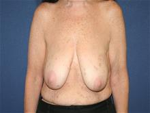 Breast Lift Before Photo by Laurence Glickman, MD, MSc, FRCS(c),  FACS; Garden City, NY - Case 29123