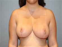 Breast Reduction After Photo by Laurence Glickman, MD, MSc, FRCS(c),  FACS; Garden City, NY - Case 29126