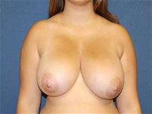 Breast Reduction Before Photo by Laurence Glickman, MD, MSc, FRCS(c),  FACS; Garden City, NY - Case 29126