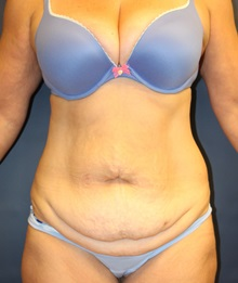 Tummy Tuck Before Photo by Laurence Glickman, MD, MSc, FRCS(c),  FACS; Garden City, NY - Case 30217