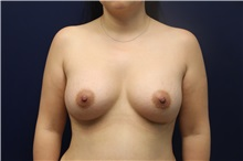 Breast Augmentation After Photo by Laurence Glickman, MD, MSc, FRCS(c),  FACS; Garden City, NY - Case 30220