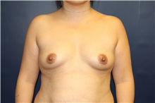 Breast Augmentation Before Photo by Laurence Glickman, MD, MSc, FRCS(c),  FACS; Garden City, NY - Case 30220